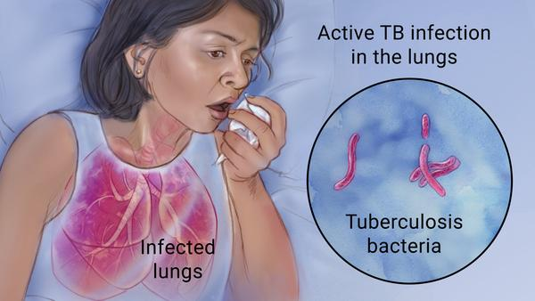 Longrich Products for Tuberculosis